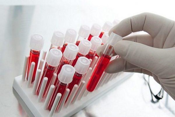 Безплатни изследвания за хепатит във Варна