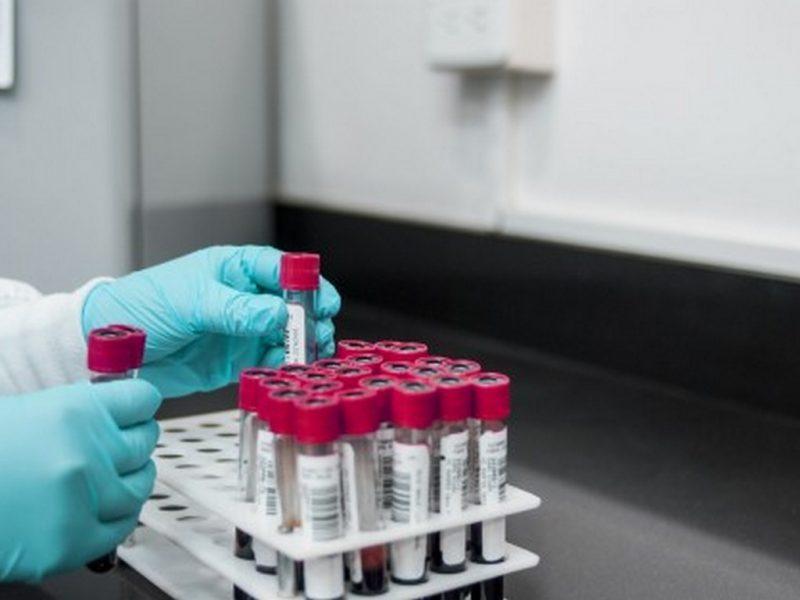 12 нови заразени с Covid-19 във Варна, 134 за страната